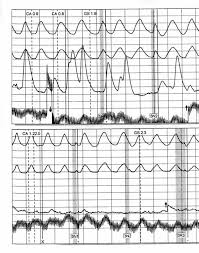 Chart Marking In Polygraph Index Of Graphics
