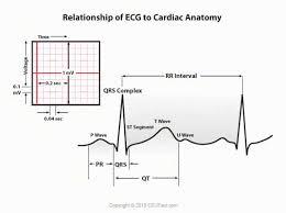 Ecg Chart Labeled Ekg Ecg Interpretation Course Ceufast Nursing Continuing