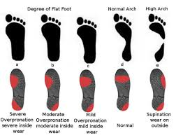 Running Shoe Wear Pattern Interesting The Right Running Shoes For You Runner Unleashed