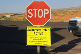 Summer's parasitic problem: Active swimmer's itch sites; prevention ...