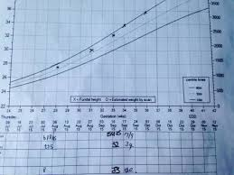 Antenatal Growth Chart Centile Lines What Weight Was Your Baby When Measuring On The 90th Centile