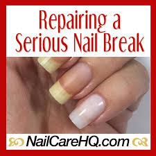 broken nail repair article meme