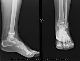 Figure Figure 4 Isolated Posterior Malleolus Fracture A