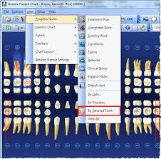 Dentrix Perio Charting Dentrix Tip Tuesdays Viewing By Selected Teeth In The