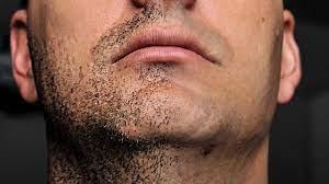 bearded fellow to reduce ingrown hairs