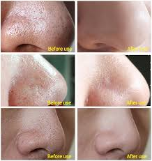 blackhead removal tool before and after. blackhead removal deep cleansing peel off face mask tool before and after