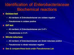 Enterobacteriaceae Biochemical Reactions Chart Gram Negative Rods Enterobacteriaceae Ppt Video Online