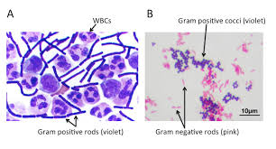 Gram Positive Bacilli Bacteria_101_cell_walls_gram_staining_common_pathogens Tusom