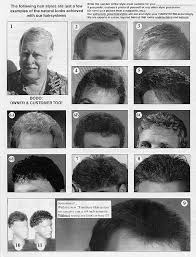 Hair Type Chart Men Hph Corp Your 1 Stop For Mail Order Hair Replacement