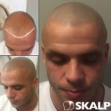 Its Not Just A Treatment Its A Lifestyle Skalpuk Hairloss
