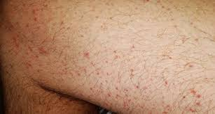 Skin rashes could be another surprising symptom of the coronavirus, according to dermatologists and doctors. 8 Ways The Coronavirus Can Affect Your Skin From Covid Toes To Rashes And Hair Loss