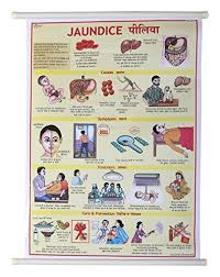 Offerta Di Oggi Vijay Surgical Jaundice Disease Lamination