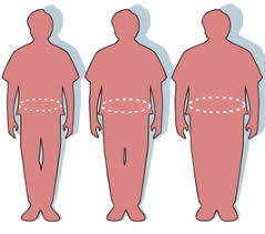 adipositas obesitas verschil