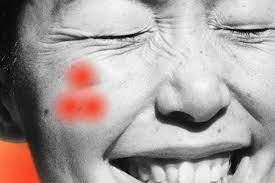 Es gibt einen punkt, an dem du eindeutig feststellen kannst, ob es sich bei deiner akne um acne vulgaris oder acne rosacea handelt: Papulopustular Rosacea When Acne And Rosacea Combine Expert Advice Allure