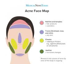 Acne Face Map Causes Of Breakouts