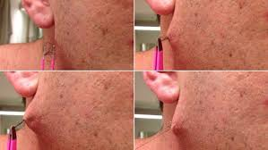 moment man pulls world s longest ingrown hair from his face daily mail