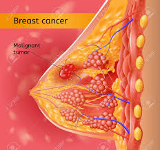 Breast Cancer Medical Vector Chart With Human Female Breast Anatomical