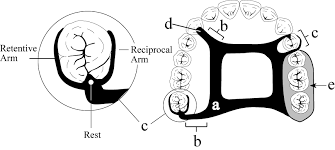 Demonstration of reciprocation - the reciprocating plate is on the right and remains in contact with the tooth when the clasp (left) disengages from the undercut.