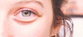 How to Get Rid of Bags Under Eyes: 13 Easy, Natural Ways - Dr. Axe