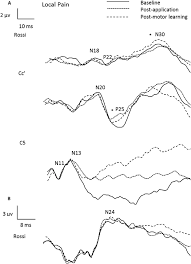 Figure 6 raw data from a representational local pain participant indicating cortical peaks