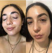Masks also trap humidity, oil, and sweat on the skin and can lead to acne or rosacea flares. he recommends having more than one mask handy and washing. How To Keep Acne Skin Hydrated On Accutane Popsugar Beauty