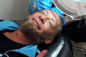 в бенидорме британцы заплатили бездомному за татуировку на лбу имени