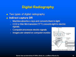 Digital Radiography Chapter 1 Introduction To Digital Radiography And Pacs Ppt