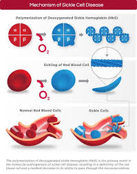example about sickle cell anemia essay effect of sickle cell disease essayswriters com