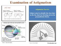 Astigmatism Chart Examination Of Astigmatism Labmonk