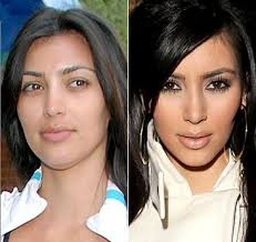 celebrities without makeup before and after if you are considering a cosmetic dentist on the