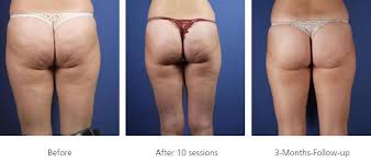 Image result for cellulite images