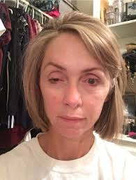 How Long Does Botox Last How Long Does Botox Eyebrow Droop Last Facial Injections