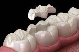intarsio dentale cos è quanto cosa e