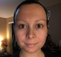I Tried Putting Lemon Juice On My Face For A Week And This Is What ...