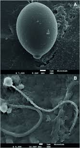 catostylus tagi partial rdna sequencing and characterisation of of c tagi viewed through sem a intact cell b after nematocyst discharge possibly an atrichous isorhiza left and a birhopaloid right bars 1 μm