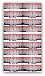 Denture Teeth Color Chart Www Bedowntowndaytona Com