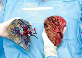 how 3 d printing is revolutionizing medicine at cleveland clinic live donor liver transplant model both donor expalnt liver only taken on