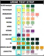 Diastix Colour Chart Siemens Multistix 8sg Colour Chart Www Bedowntowndaytona Com