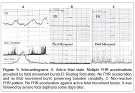 Fetal Kick Chart Pdf Fetal Movements