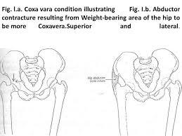 Coxa Vara Hip Deformities Coxa Vara Coxa Vara Is A Progressive