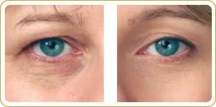 best eye tightening serum