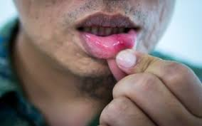 recur mouth ulcers and canker sores