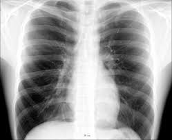They will also perform a physical examination to assess the site of. Thorax Wikipedia