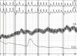 Chart Marking In Polygraph Concealed Information Test Chart Cit No 1 The First