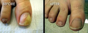 nail fungus before and after pictures