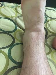 sprained ankles still hurts after 15