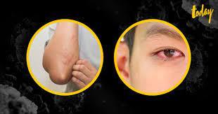 สังเกตลักษณะอาการใหม่ป่วยโควิด-19 ตาแดง มีผื่นขึ้น