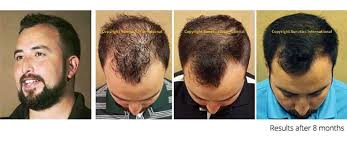 laser hair loss therapy treatment non