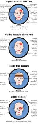 Cluster Headache Location Chart 8 Best Types Of Headaches Images In 2019 Headache Remedies
