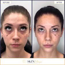 eye hollows correction photo 2